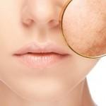 Campaña de prevención del cáncer de piel - Campus Bilbao